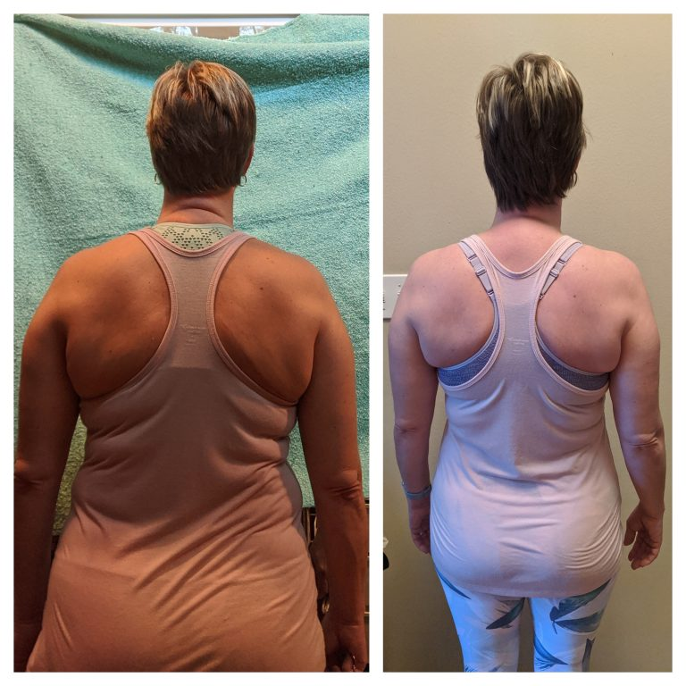 Cheryl W back Before and After 1219
