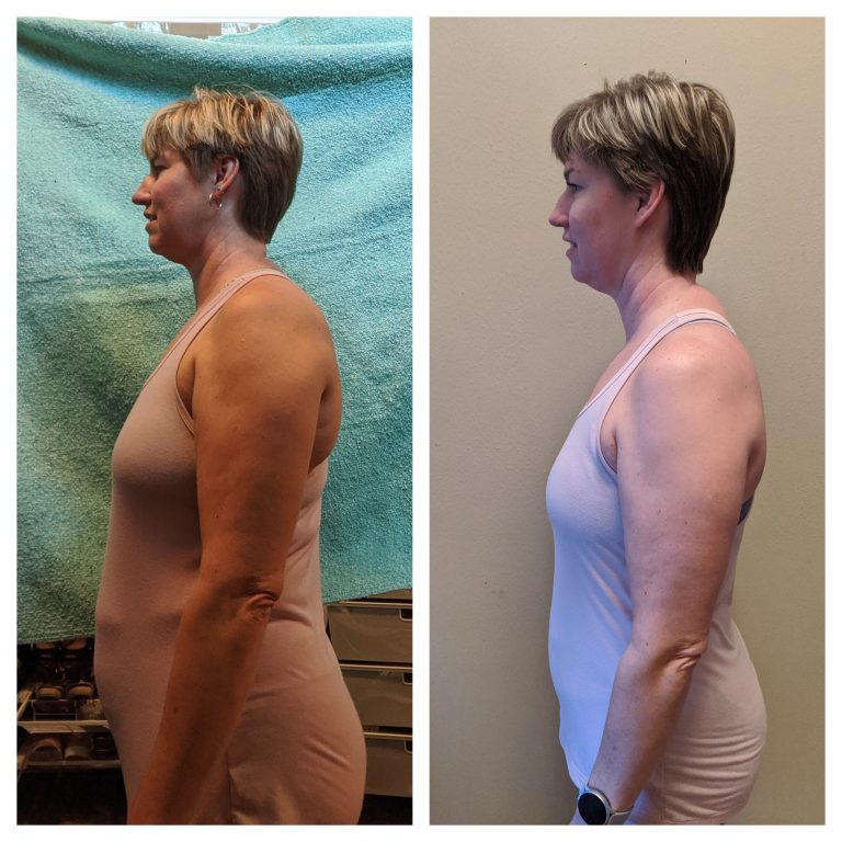 Cheryl W side Before and After 1219
