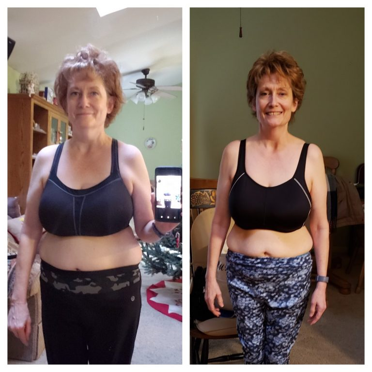 Margie T Before After front